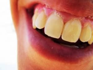 Alimentos para tener los dientes blancos