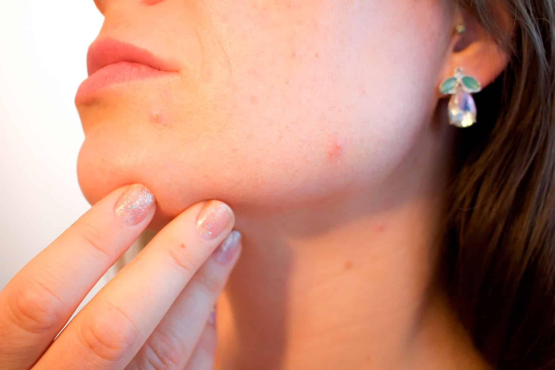 Descubre cuáles son los mejores alimentos contra el acné